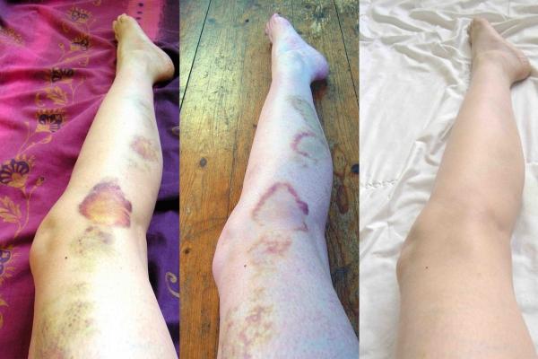 Lique Schoot, She's Got Legs (Leg 06 09 06, 06 09 12 and 06 09 18)